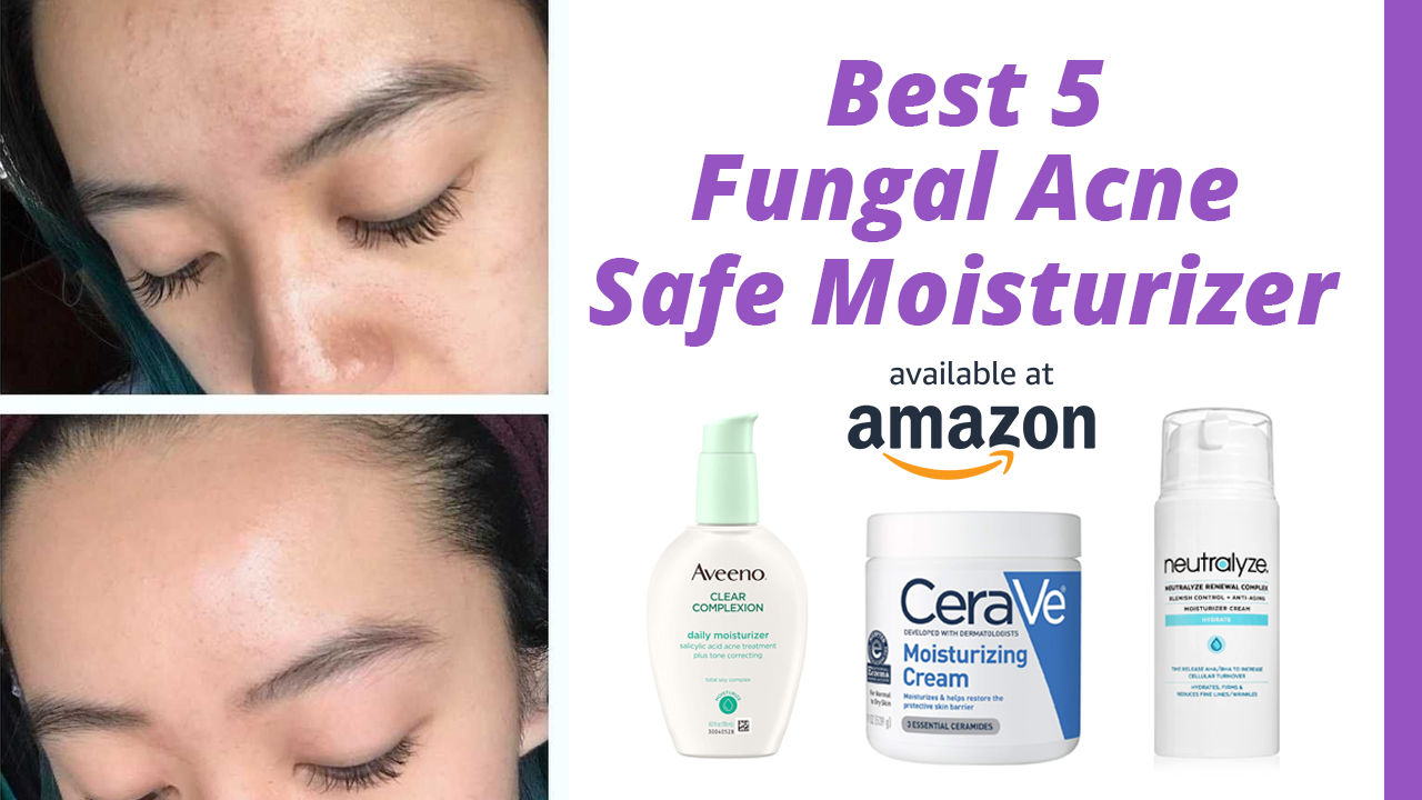 5 Best Fungal Acne Safe Moisturizer