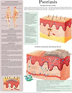 Psoriasis e-chart: Full illustrated