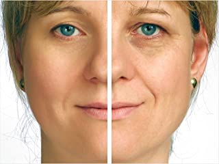 Instant Facelift Extension (Medium Brown to Light Brown)