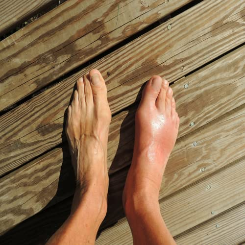 Gout Cure and Relief App - How to Cure Gout