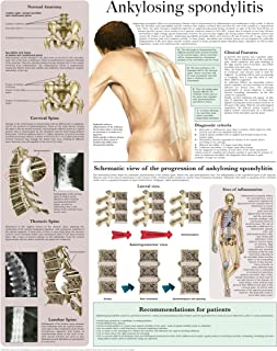 Ankylosing spondylitis e-chart: Quick reference guide
