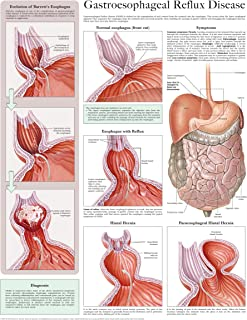 Gastroesophageal reflux disease e-chart: Full illustrated