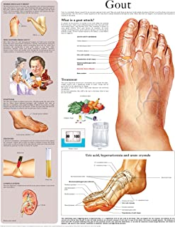 Gout e-chart: Full illustrated
