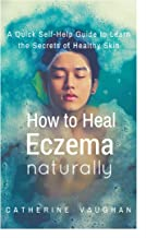 How to Heal Eczema Naturally: A Quick Self-Help Guide to Learn the Secrets of Healthy Skin. (English Edition)