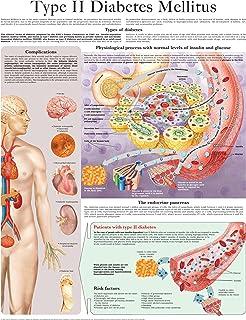 Type II Diabetes Mellitus e-chart: Full illustrated