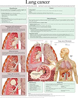 Lung cancer e-chart: Full illustrated