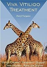 Viva Vitiligo Treatment: Vitiligo Causes - Treatment - Support - Case Studies - Real Life Stories (English Edition)