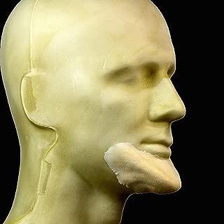 prosthetic chin