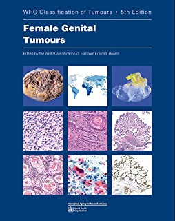 Female Genital Tumours (Who Classification of Tumours)