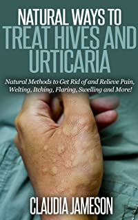 Natural Ways to Treat Hives and Urticaria: Natural Methods to Get Rid of and Relieve Pain, Welting, Itching, Flaring, Swel...