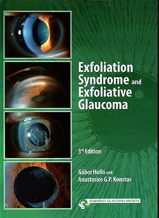 EXFOLIATION SYNDROME AND EXFOLIATIVE GLAUCOMA 3rd ED