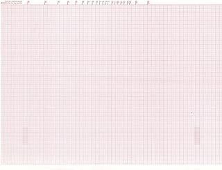 ECG Paper for Mortara ELI 200 - 215mm X 280mm X 200 Sheets, Z-fold (3/box)