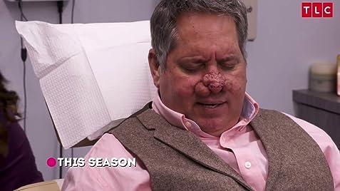Dr Pimple Popper Tv Series 2018 Imdb
