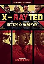 X-Rayted