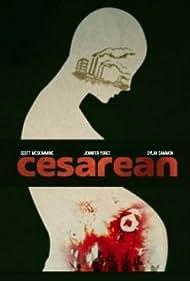 Cesarean (2017)