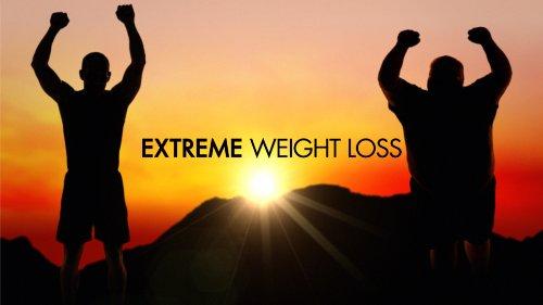 Extreme Weight Loss Rachel Tv Episode 2011 Imdb