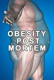Obesity: The Post Mortem (2016)