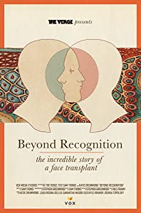 Beyond Recognition: The Incredible Story of a Face Transplant by none