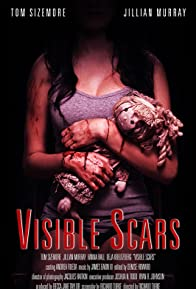 Primary photo for Visible Scars