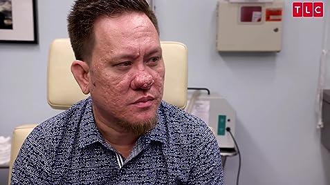 Dr Pimple Popper Nose No Bounds Tv Episode 2019 Imdb