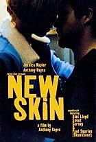 New Skin