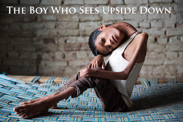 The Boy Who Sees Upside Down (2016)
