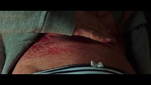 RAW - 'Itchy Skin' Clip