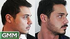 Beard Transplants Are Real