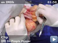 Dr Pimple Popper Tv Series 2018 Video Gallery Imdb