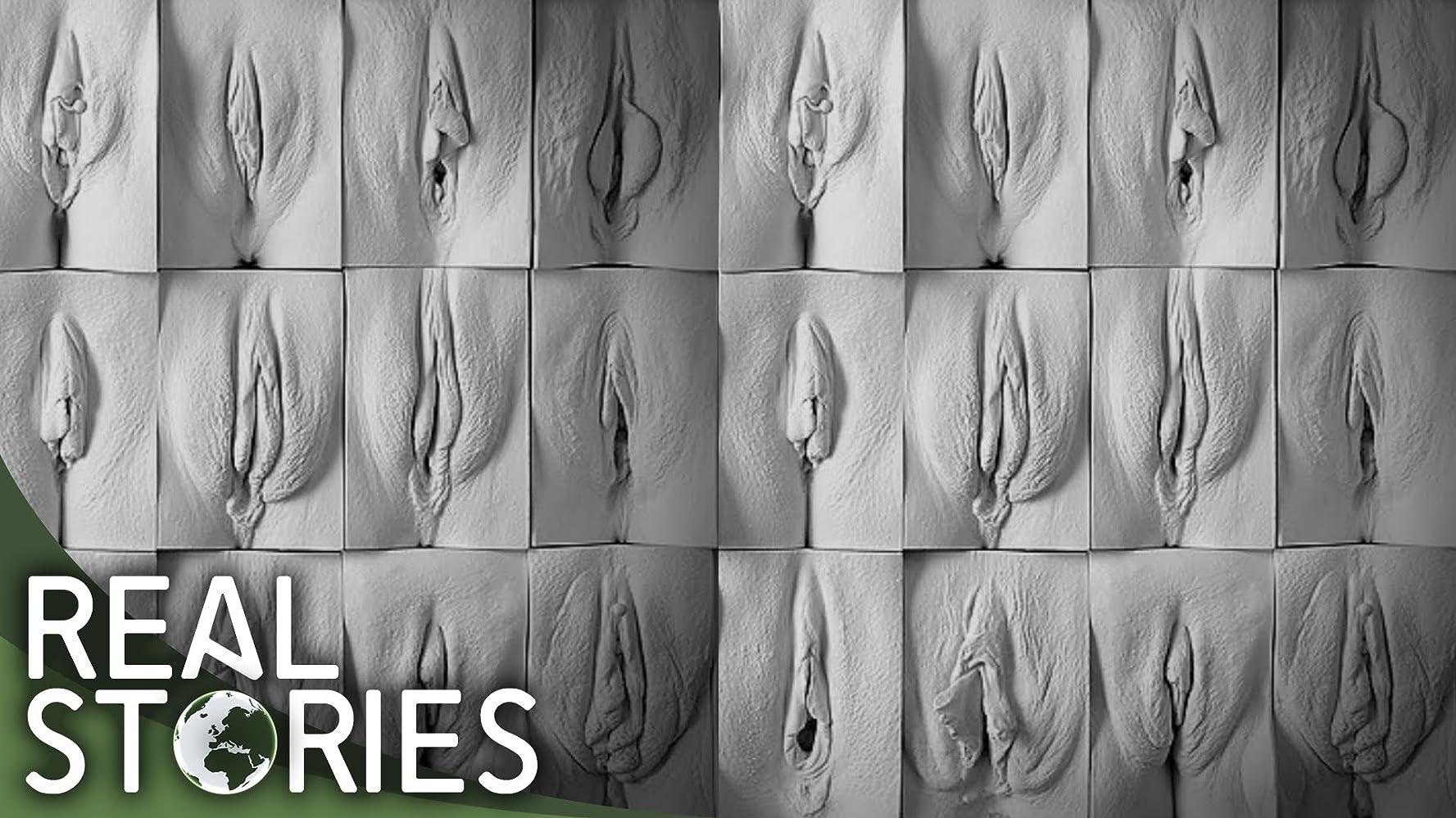 Picture of vagina with peanus