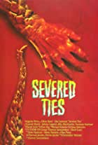 Severed Ties