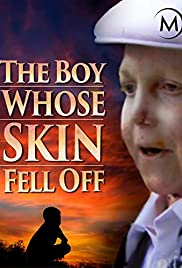The Boy Whose Skin Fell Off Poster