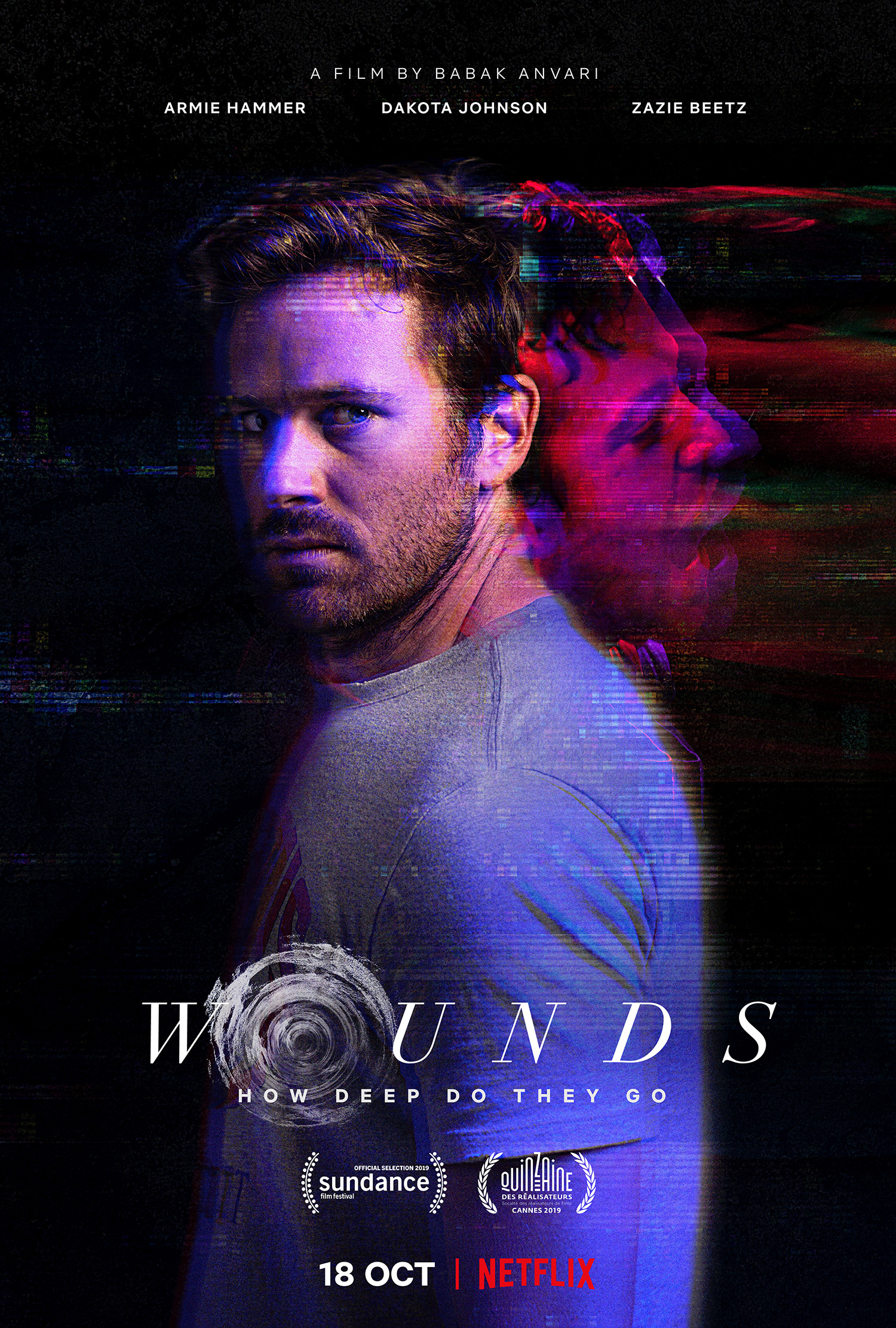 Image result for wounds netflix