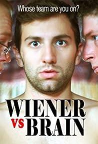 Primary photo for Wiener vs Brain