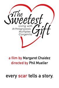 Full movie torrents free download The Sweetest Gift: Living with Arthrogryposis Multiplex Congenita [Avi]