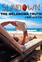 Sundown: The Melanoma Truth