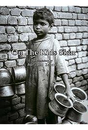 On the Kids Skin