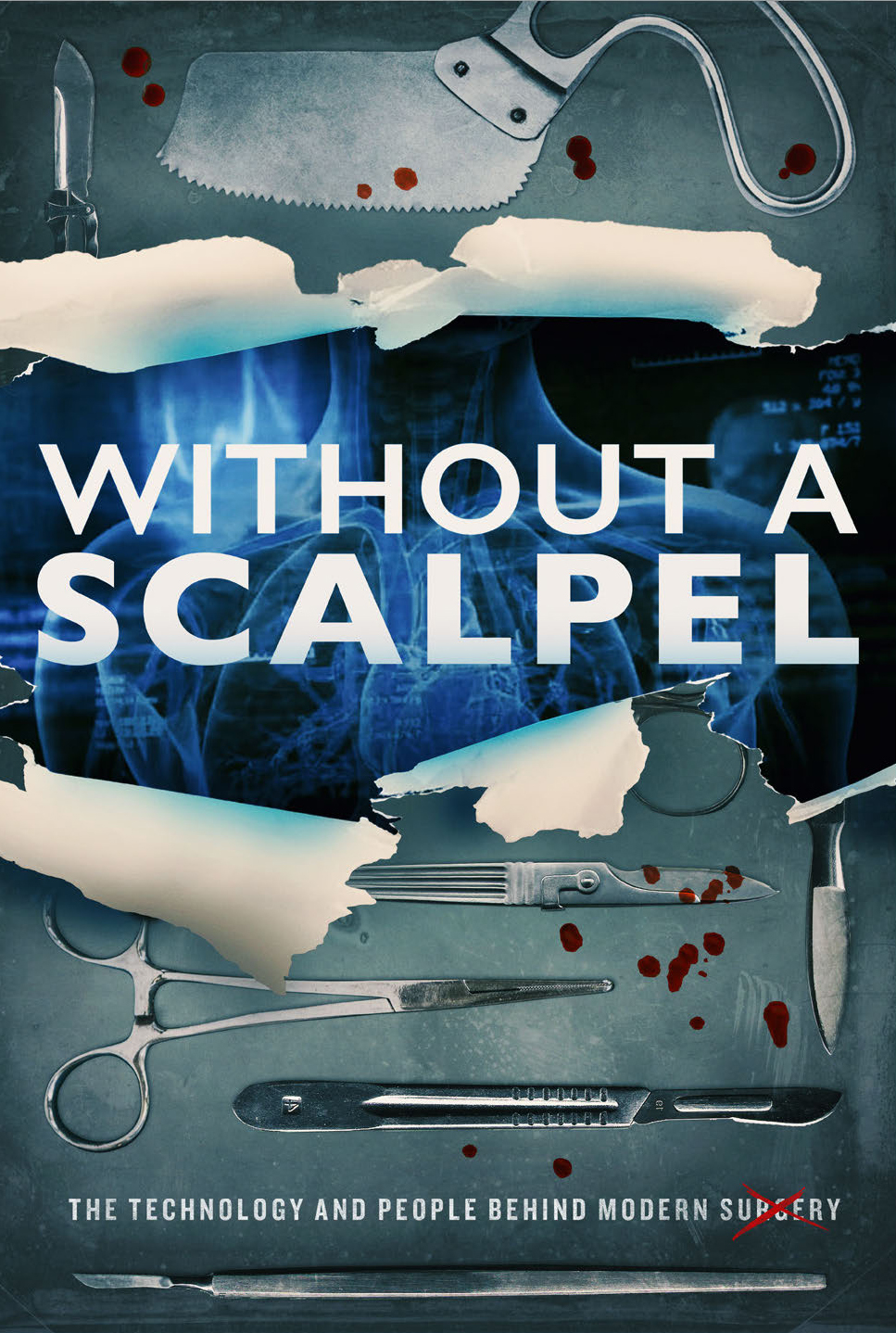 Without a Scalpel on FREECABLE TV