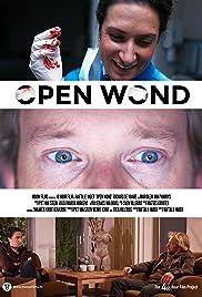 Open Wond Poster