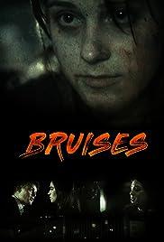 Bruises Poster