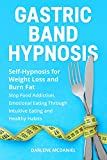 Free eBook - Gastric Band Hypnosis