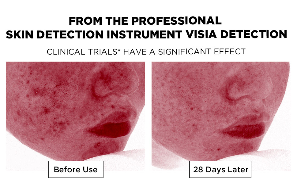 From the Professional Skin Detection Instrument VISIA Detection
