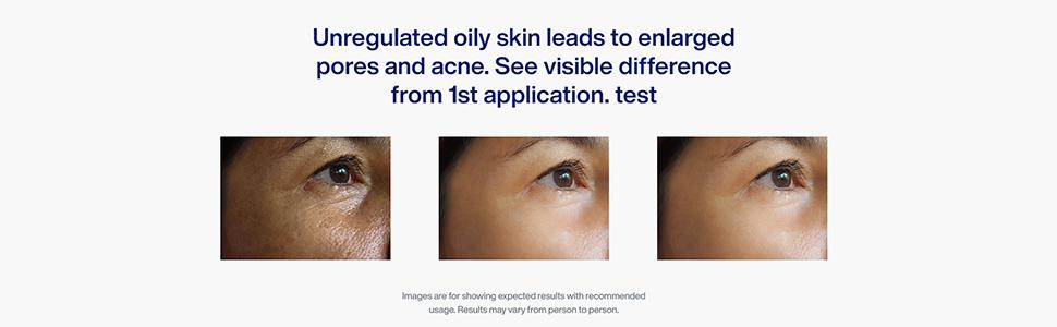 Unregulated oily skin leads to enlarged pores and acne