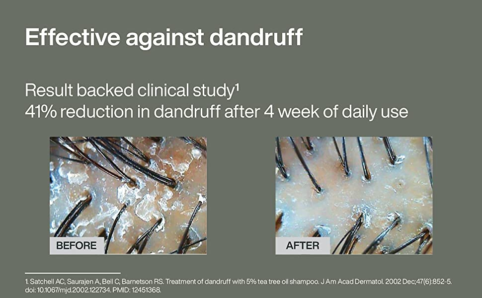 GOODamp;amp;amp;ALL tea tree mint shampoo effective dandruff result backed by clinical study