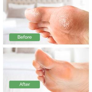exfoliating foot mask