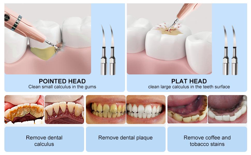 ultrasonic Teeth Cleaner kit