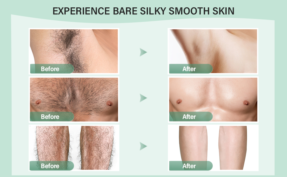Epify Hair Removal