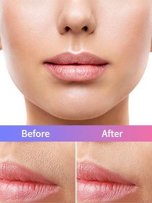 Women Facial Hair Removal-02