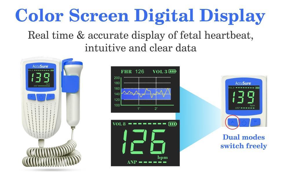 Display feature of accusure fetal doppler
