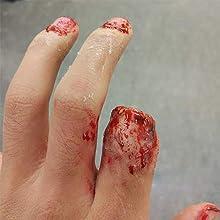 broken fingers